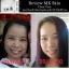 MK Skin Clear Face เซตรักษาสิว อุดตัน สิวเสี้ยน สิวสเตียรอยด์ มี 2 ชิ้นในกล่อง thumbnail 3